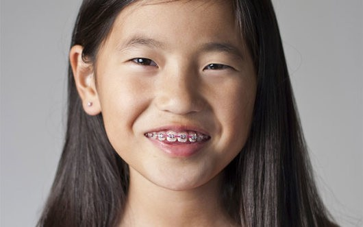 Girl with braces
